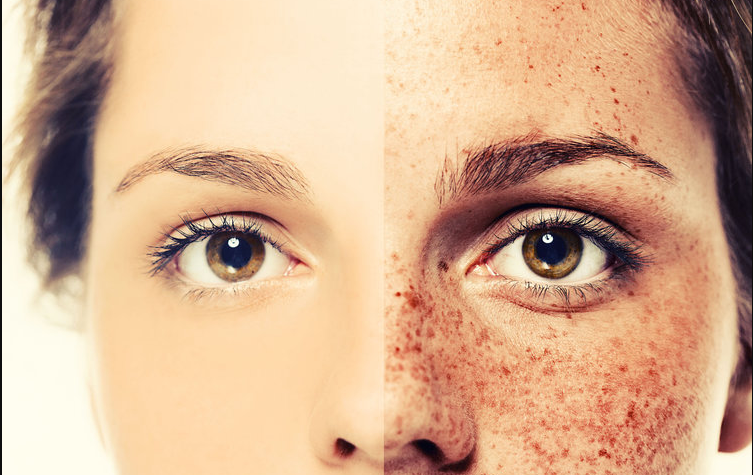Difference between freckles and dark spots