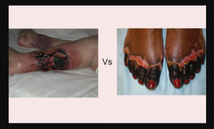 Difference between gangrene and necrosis