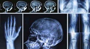 Difference-between-CAT-Radiography-and-MRI-